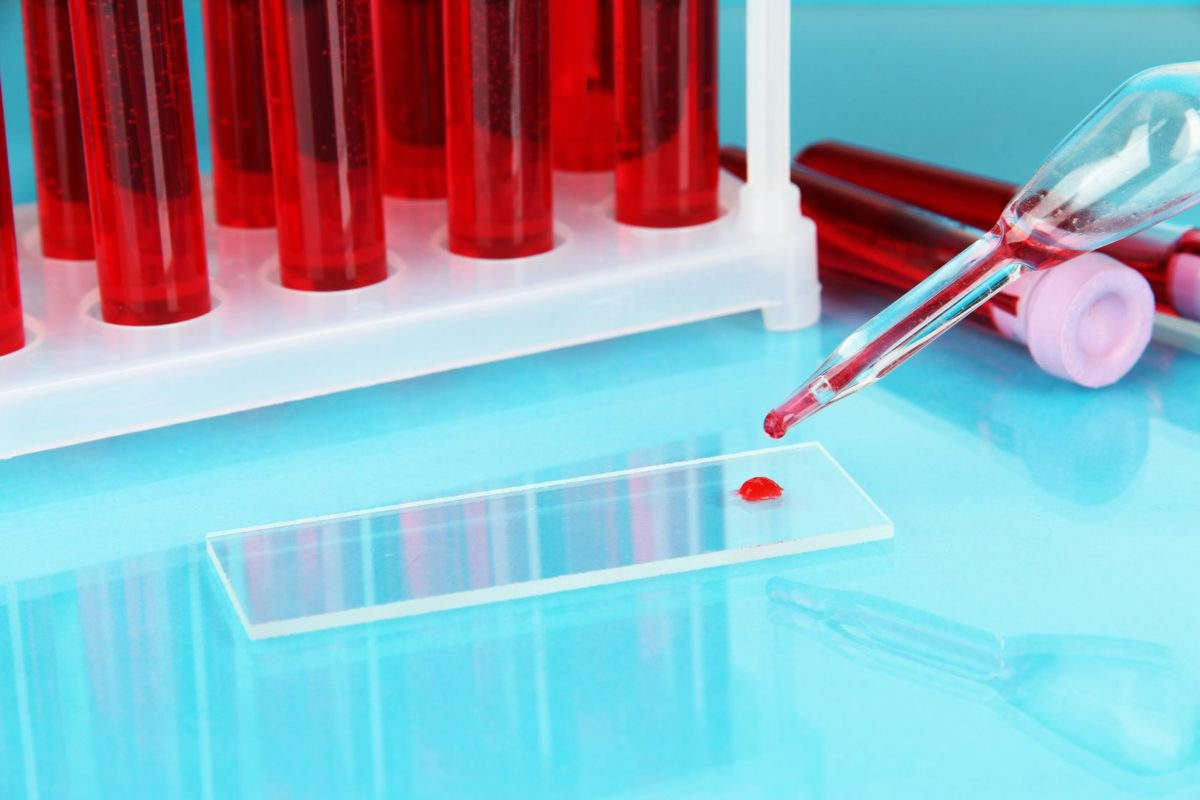 19764766 - test tubes with blood in laboratory on blue background